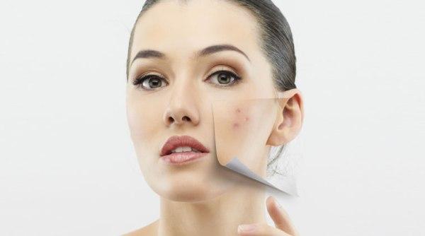 Dấu hiệu làn da đang kêu cứu và cách khắc phục