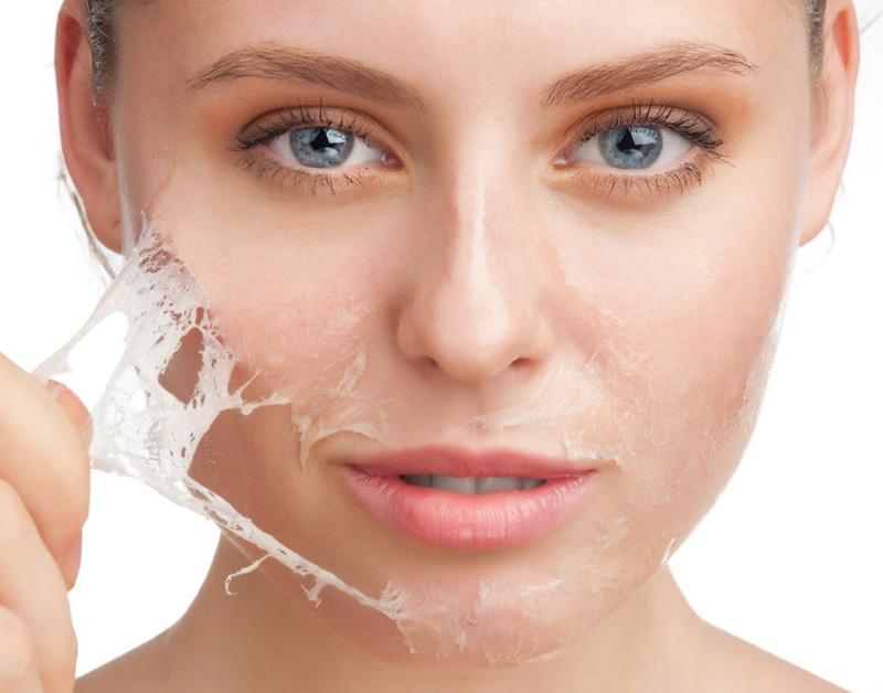 Tôi bị mụn đầu đen có nên lột da hóa học tại nhà?