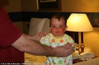 Bệnh hiếm khiến bé gái phải đội mũ bảo hiểm cả ngày