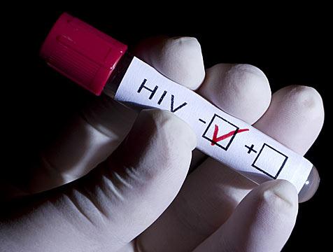Aspirin có thể làm giảm nguy cơ lây nhiễm HIV
