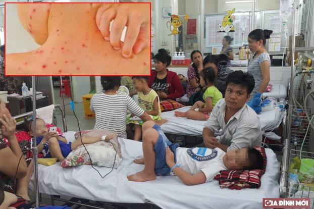 Hiện tất cả các quận, huyện ở Hà Nội đã ghi nhận bệnh nhân mắc sốt xuất huyết và sởi. Ảnh minh họa