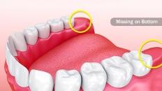 Tại sao răng khôn cần phải được phẫu thuật loại bỏ?