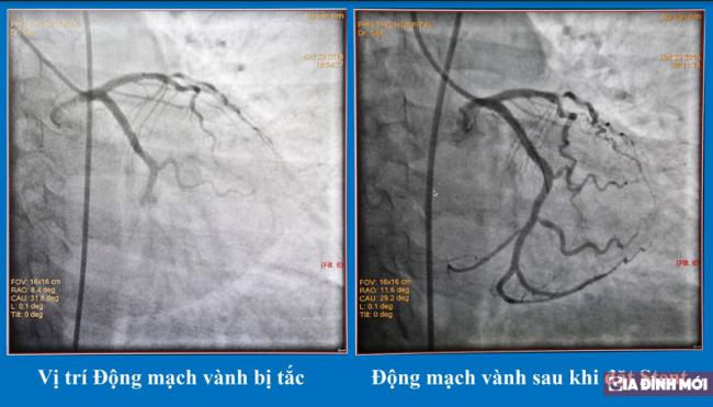 Nhập viện trong tình trạng sốc tim vì hút cả bao thuốc lá mỗi ngày 0