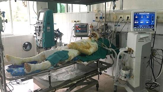 Cụ ông tử vong vì sốc nặng sau khi chữa bỏng ở nhà thầy lang
