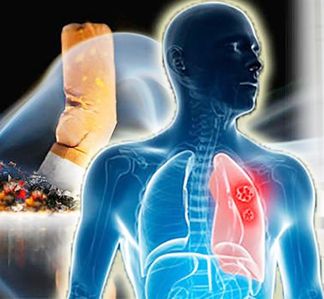 Làm gì để đối phó ung thư phổi?