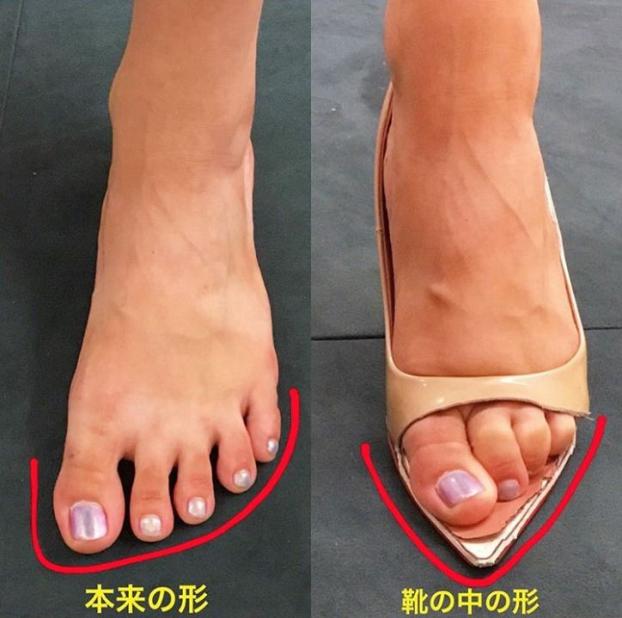 Những đôi chân biến dạng vẹo vọ, xấu xí và đau đớn vì đam mê đi giày cao gót của các sao 0