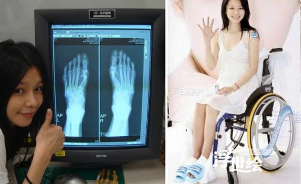 Những đôi chân biến dạng vẹo vọ, xấu xí và đau đớn vì đam mê đi giày cao gót của các sao 10