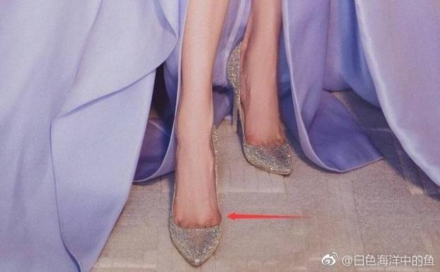 Những đôi chân biến dạng vẹo vọ, xấu xí và đau đớn vì đam mê đi giày cao gót của các sao 13