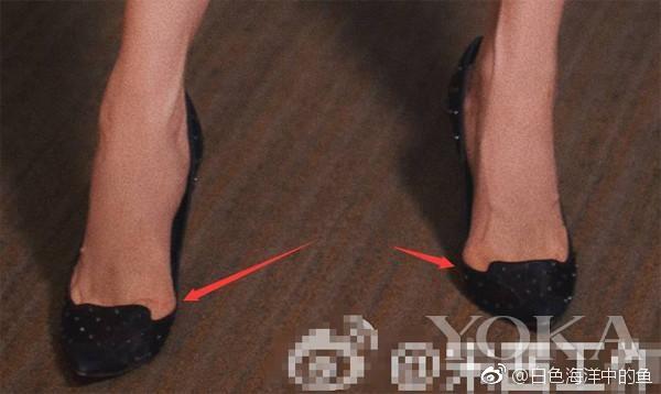 Những đôi chân biến dạng vẹo vọ, xấu xí và đau đớn vì đam mê đi giày cao gót của các sao 14