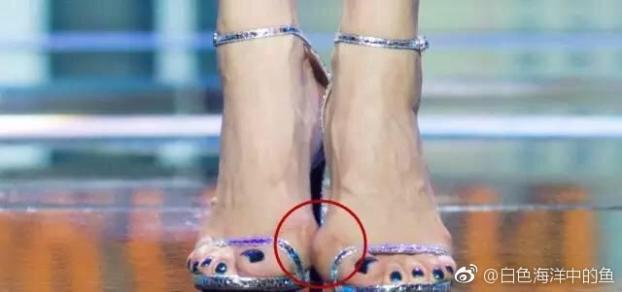 Những đôi chân biến dạng vẹo vọ, xấu xí và đau đớn vì đam mê đi giày cao gót của các sao 15