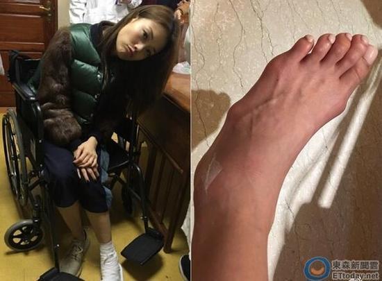 Những đôi chân biến dạng vẹo vọ, xấu xí và đau đớn vì đam mê đi giày cao gót của các sao 17
