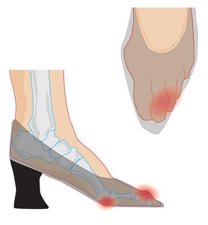 Những đôi chân biến dạng vẹo vọ, xấu xí và đau đớn vì đam mê đi giày cao gót của các sao 20
