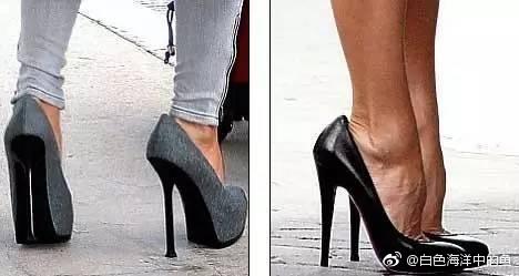 Những đôi chân biến dạng vẹo vọ, xấu xí và đau đớn vì đam mê đi giày cao gót của các sao 6