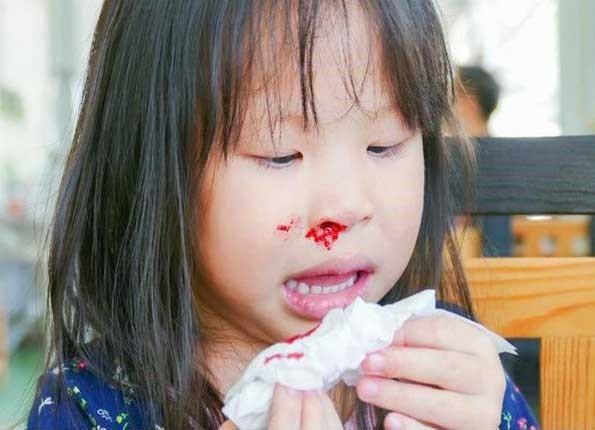 Từ vụ cháu bé nhập viện vì chảy máu cam ngày nóng, cảnh báo điều cha mẹ cần làm để không hại con
