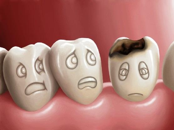 Những bệnh cực nguy hiểm về răng miệng bạn dễ mắc phải