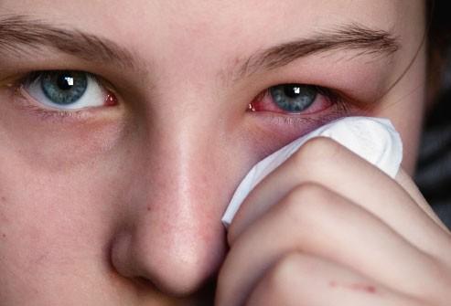 Nguyên nhân gây đau và cách bảo vệ mắt trong mùa xuân