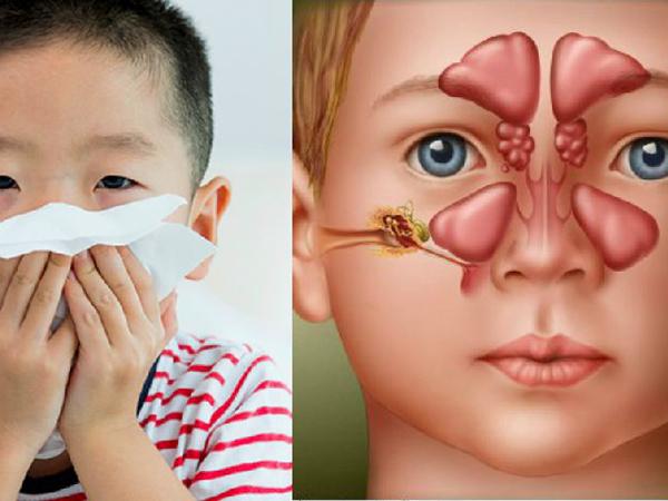Trẻ viêm xoang suýt mù vì biến chứng