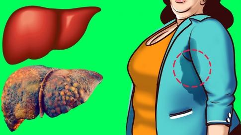 9 dấu hiệu cảnh báo cơ thể bạn đang tích tụ nhiều độc tố