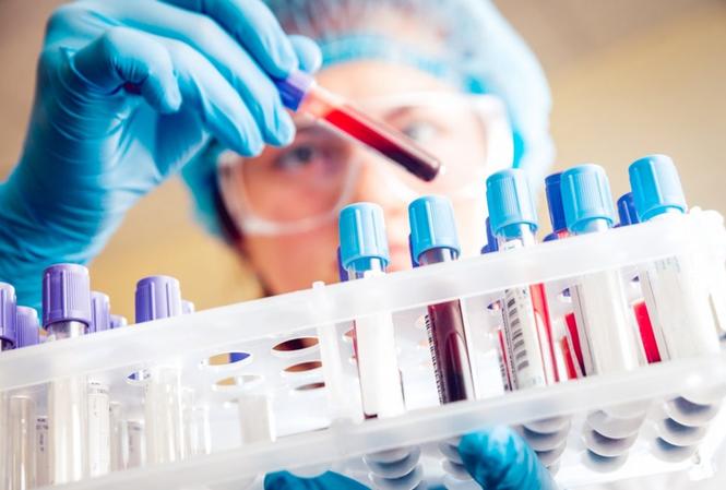 86 đơn vị được Bộ Y tế cấp phép thực hiện xét nghiệm khẳng định Covid-19